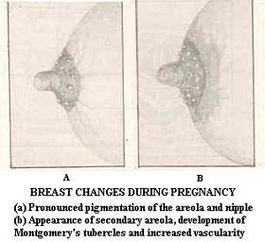 Breast Changes in Pregnancy