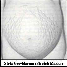 Stria - Stretch marks