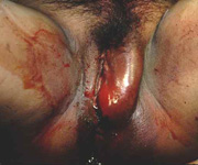 Vulvar Hematoma after Childbirth