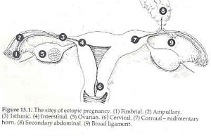 Sites of Ectopic Pregnancy