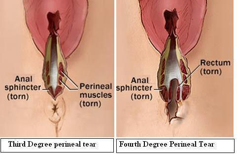Third Degree and Fourth Degree Perineal Tear