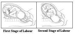 Stages of Labor-1 and 2