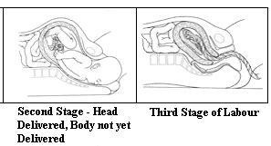 Stages of Labor-2 and 3